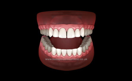12 Veneers or Zirconium Crowns - Dental Aesthetic Packages - Budapest Dental Clinic Hungary