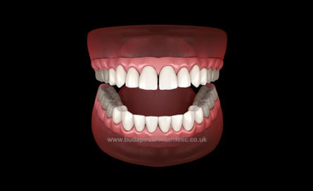 16 Veneers or Zirconium Crowns - Budapest Dental Clinic Hungary
