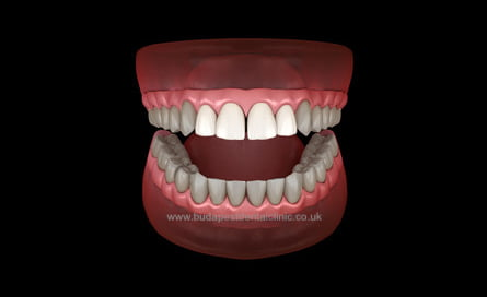 4 Veneers or Zirconium Crowns - Dental Aesthetic Packages - Budapest Dental Clinic Hungary