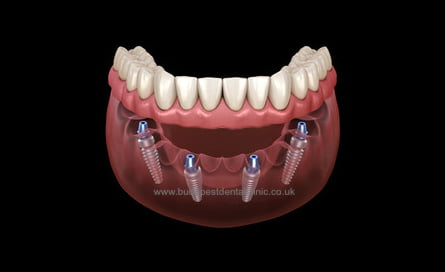 All-on-4 - Dental Implant Packages - Budapest Dental Clinic Hungary