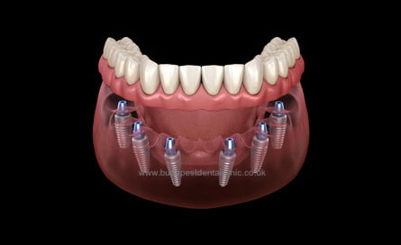 All-on-6 - Dental Implant Packages - Budapest Dental Clinic Hungary