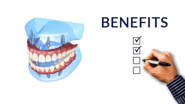 Dental Implant Benefits - Budapest Dental Clinic Blog