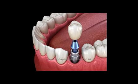 Single Dental Implant Package - Budapest Dental Clinic Hungary