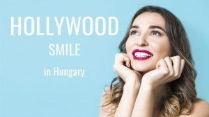 Dental Veneers aka Hollywood Smile in Hungary - Budapest Dental Clinic Blog